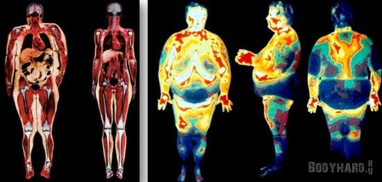 Подкожный и висцелярный жир в организме человека